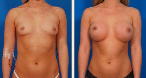 Breast Augmentation in Beverly Hills