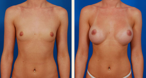 Best Breast Augmentation in Beverly Hills