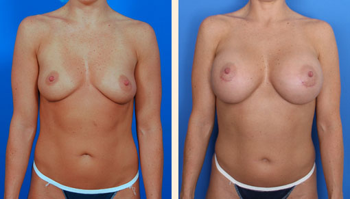 Top Breast Augmentation in Beverly Hills