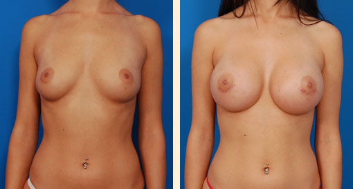 The Furry Brazilian Breast Implants & Augmentation.