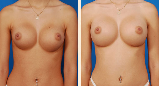 Best Breast Augmentation Beverly Hills