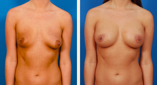 Before and After a Breast Augmentation in Beverly Hills