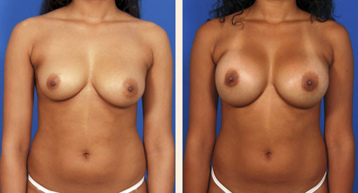 B&A Breast Augmentation Beverly Hills