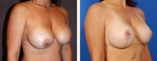 Breast Augmentation Surgery Beverly Hills