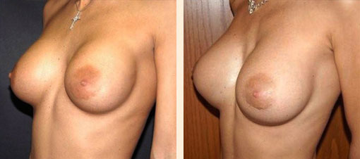 Breast Augmentation Surgeon Beverly Hills