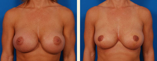 Before and After a Breast Augmentation