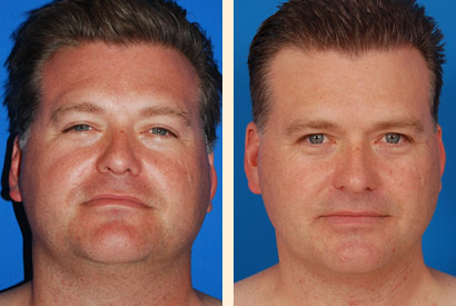 Face And Neck Liposuction Before And After 04