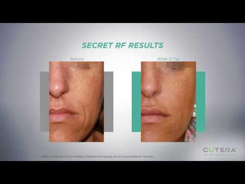 Mircroneedling RF Los Angeles | Facial Rejuvenation Beverly